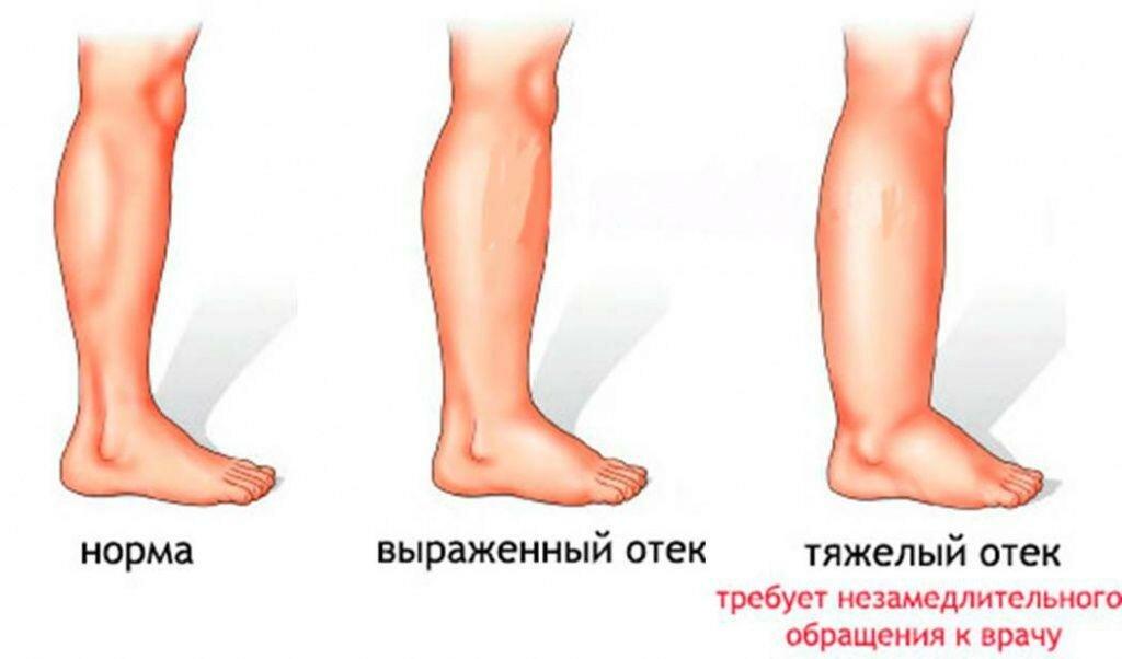 Не пренебрегайте обращением к врачу, если отёки длительно не спадают