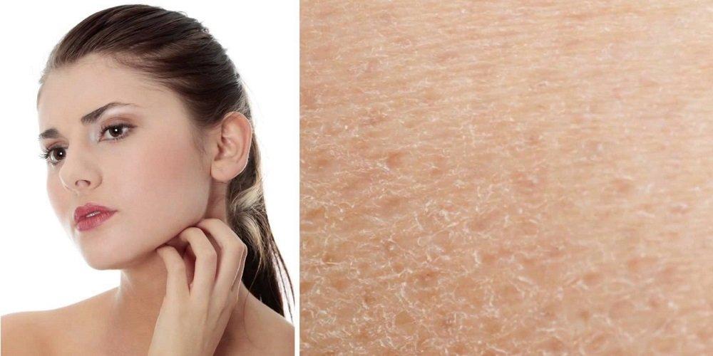 Очень чувствительная кожа тела причины