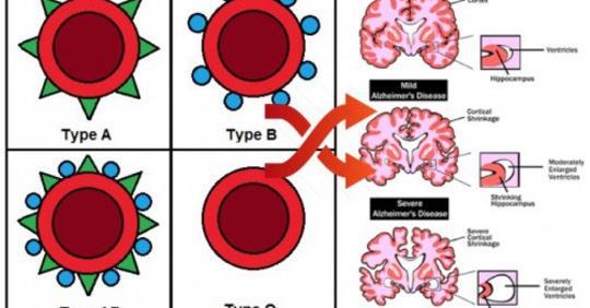 Группа крови, которая имеет на 82% более высокий риск деменции