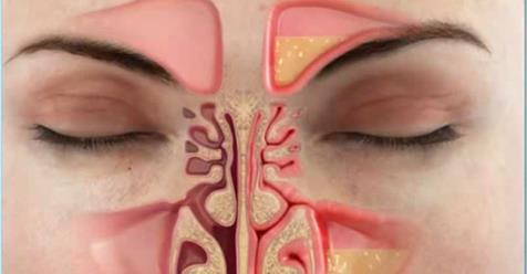 10 домашних методов для устранения заложенности носа менее чем за минуту