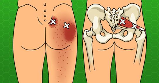 Держите боль в спине и бедрах под контролем с помощью 6 растяжек