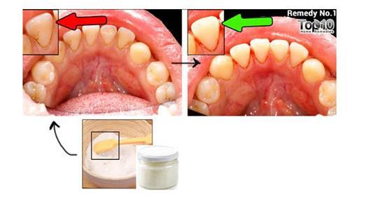 Как естественным способом удалить зубной налет и зубной камень