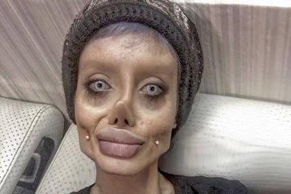 """Иранка, """"сделавшая 50 операций, чтобы стать похожей на Джоли"""" всех обманула!"""