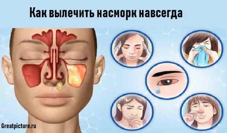 Как вылечить насморк навсегда