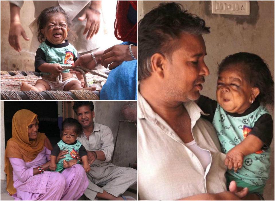 23-летний индиец в теле ребенка