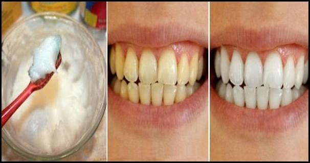 Отбеливайте зубы всего за 3 минуты, используя эти 2 натуральных ингредиента