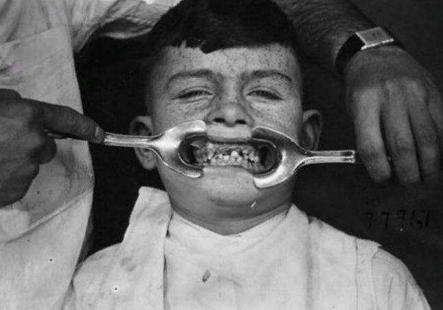 Почему с возрастом у людей искривляются зубы