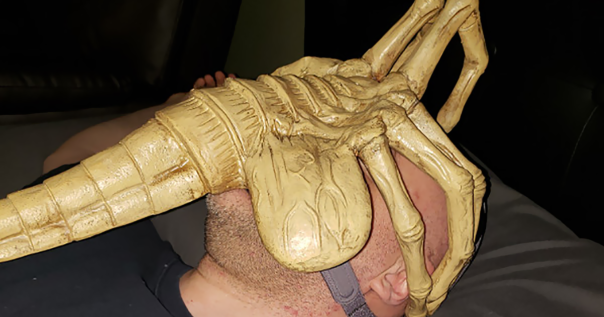 Doctors Tell This Man That He Needs To Wear A Mask To Help Him Breathe So He Turns It Into Alien Facehugger