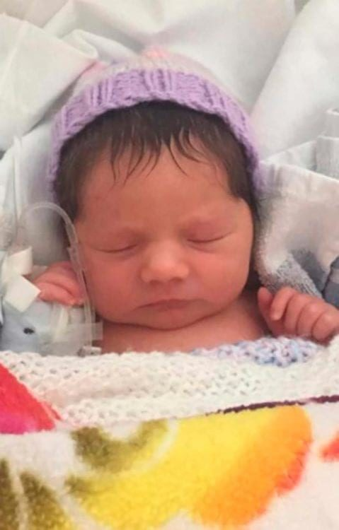 Женщина родила красивую и здоровую девочка, но одна деталь в ее внешности не давала врачам покоя