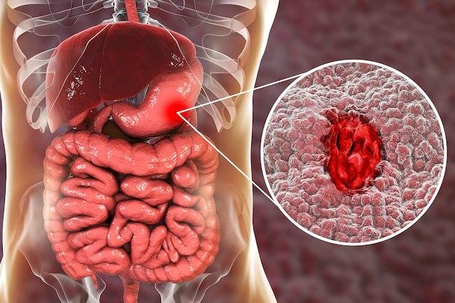 Картинки по запроÑу Симптомы Ñзвы желудка и легкие варианты лечениÑ