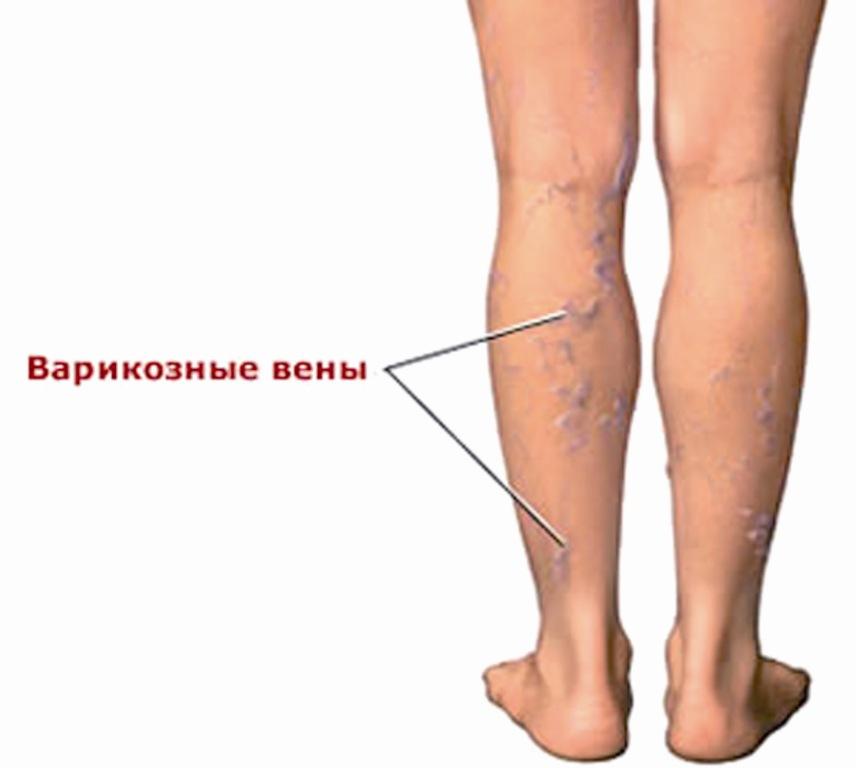 Самые читаемые статьи: Лечение варикоза отзывы