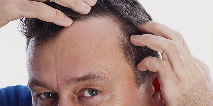 Новые мифы о пересадке волос