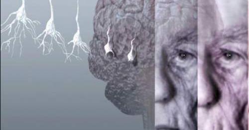 Ранние признаки деменции и различия между деменцией и болезнью Альцгеймера