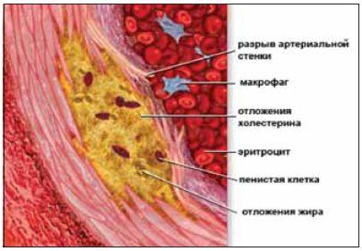 Лечение атеросклероза в домашних условиях