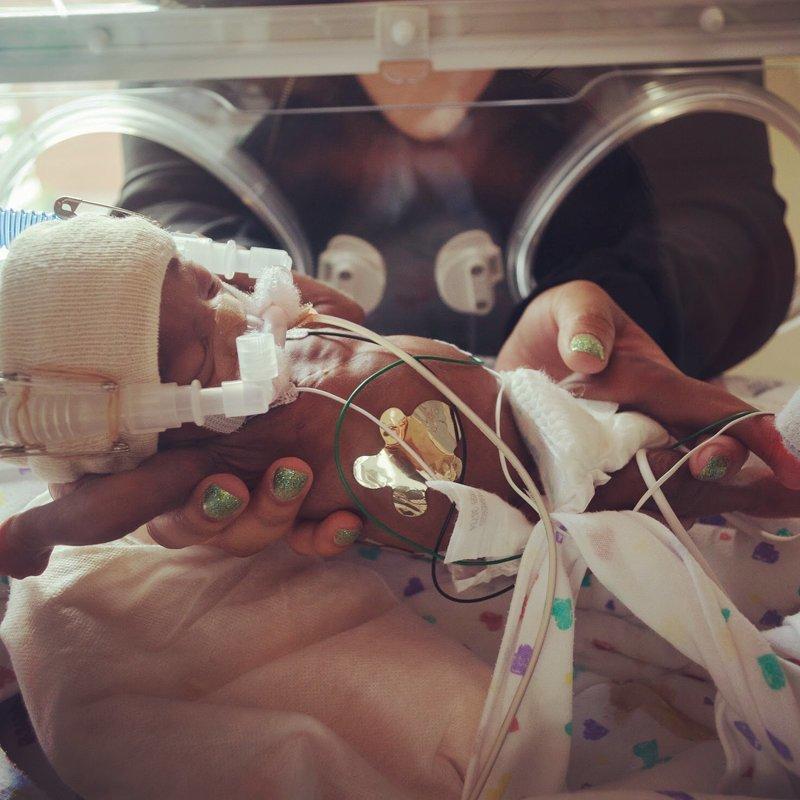 Фото сделано год назад дети, интересно, история, преждевременные роды, чудо