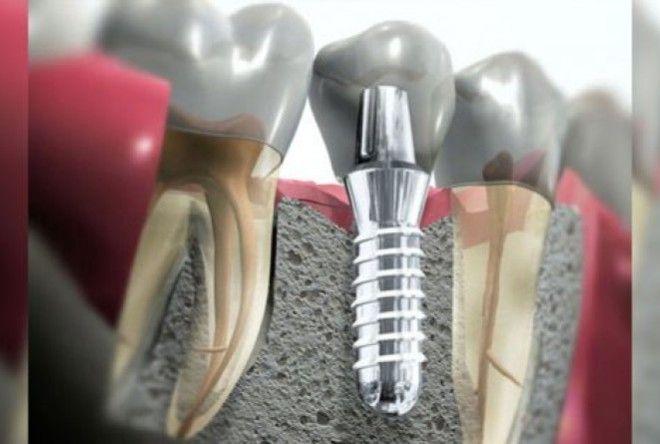 Что лучше — штифт или имплант? Все подводные камни имплантации зубов!