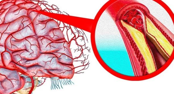 Рецепты для очищения сосудов головного мозга