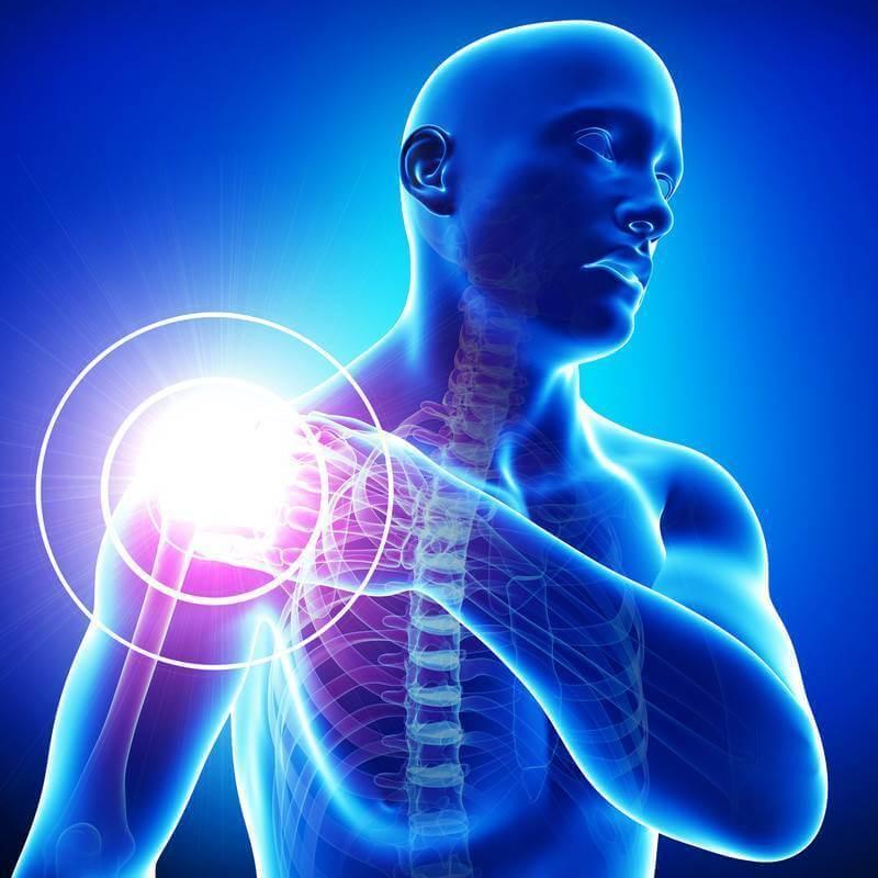 Боли в плечевом суставе: 4 т…