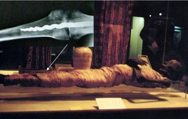 Мумия со штифтом в ноге – как это возможно