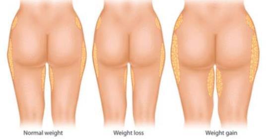 10 продуктов, которые являются причиной лишнего веса