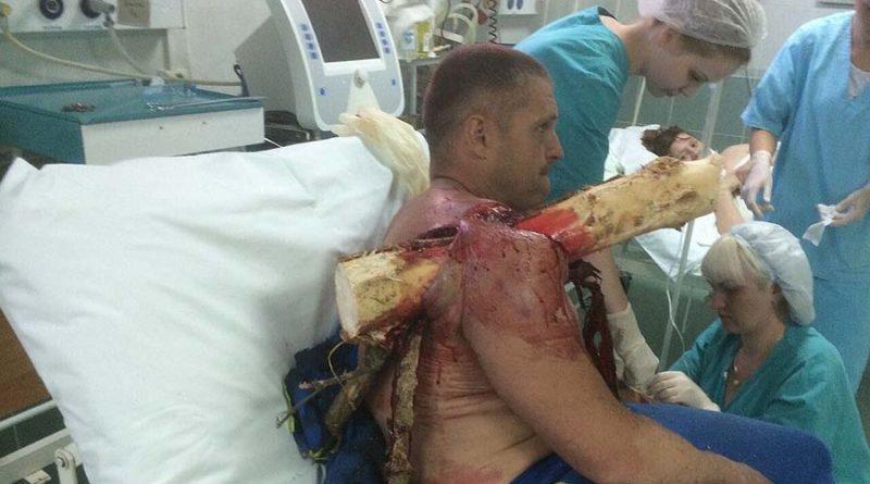 Белорусский пилот самодельного летательного аппарата получил ужасную травму после его крушения