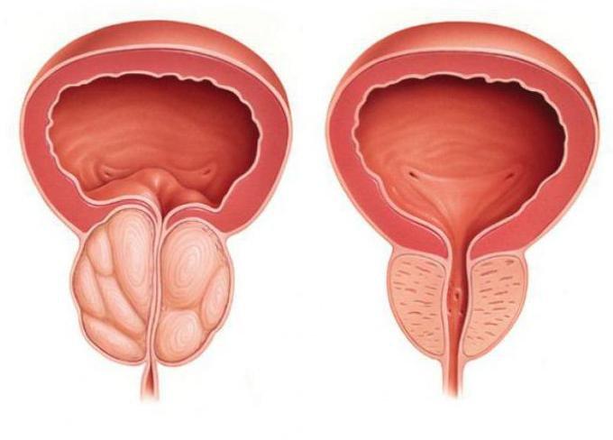Народные советы лечения простатита