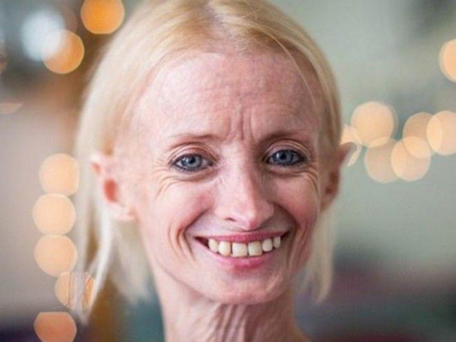 Эта женщина стареет в 8 раз быстрее обычного человека Вот как она выглядит