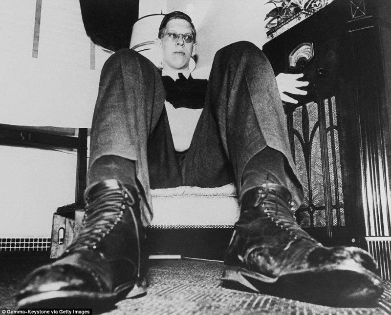 Вот это ножищи! И ботинки 49 размера акромегалия, великан, опухоль, рекорд, рекорд гиннесса, рекордсмен Гинесса, самый высокий, самый высокий человек