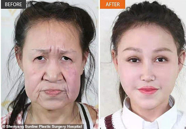 Китайская девочка из-за редкой болезни в 15 лет выглядела как старушка, но пластическая операция все исправила
