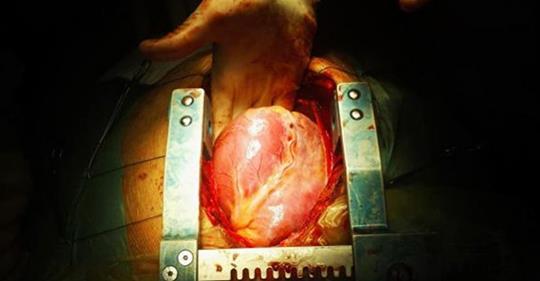 Кардиохирург говорит об истинной причине болезни сердца