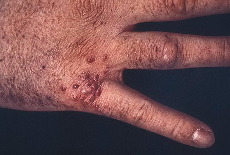 Признаки болезни домашних условиях 837