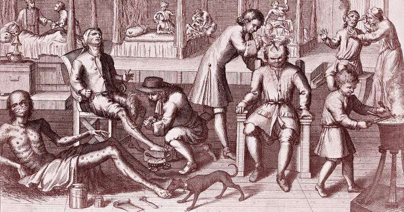 Как в старину лечение венерические болезни: свинцовые гири, кнут и ртутные мази