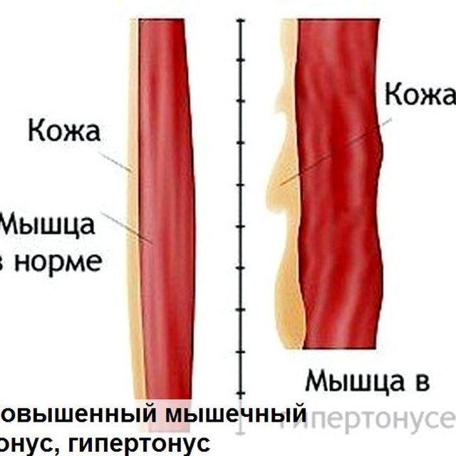 ГИПЕРТОНУС МЫШЦ КАК ПРИЧИНА ОБРАЗОВАНИЯ МОРЩИН