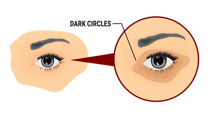 5 простых способов удаления темных кругов под глазами естественным способом