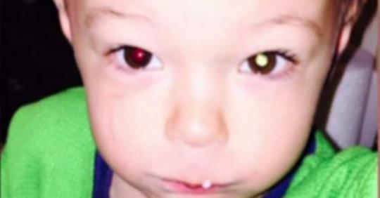 Эта фотография помогла матери диагностировать рак у ребенка