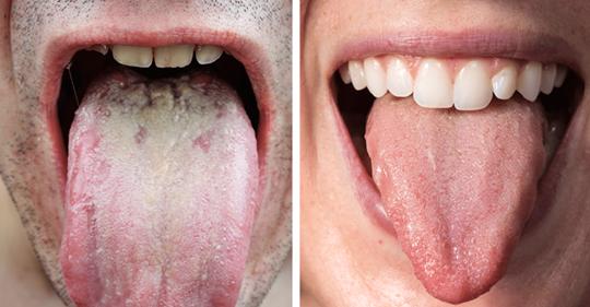 Исследователи объясняют, что цвет  языка говорит о вашем здоровье