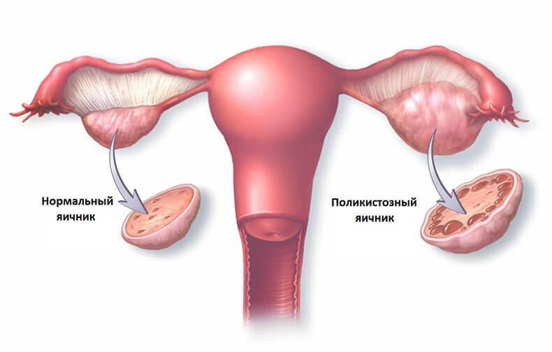Женское здоровье: Самый уязвимый орган у женщин после 40