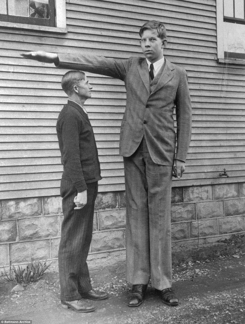 Роберт в возрасте 13 лет рядом со своим отцом Гарольдом акромегалия, великан, опухоль, рекорд, рекорд гиннесса, рекордсмен Гинесса, самый высокий, самый высокий человек