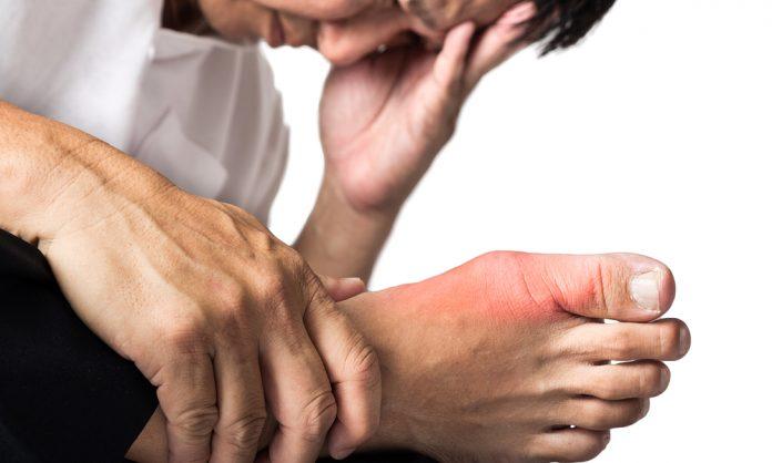Вот как устранить кристаллизацию мочевой кислоты из вашего тела, чтобы бороться с болью в суставах и подагрой