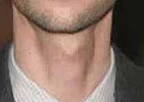 Киста щитовидной железы рассосалась