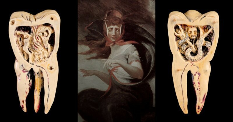 5 медицинских заблуждений прошлого врач, дантист, древность, заблуждения, история, медицина, суеверия