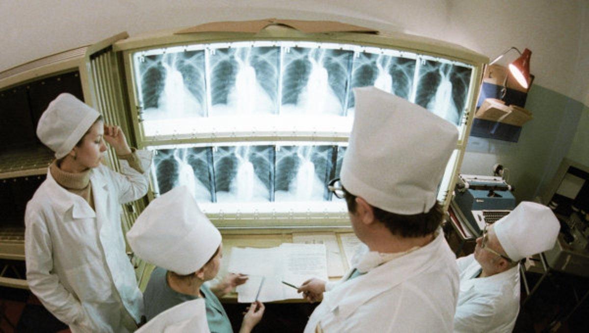 Российские врачи научились распознавать рак легких за 20 секунд