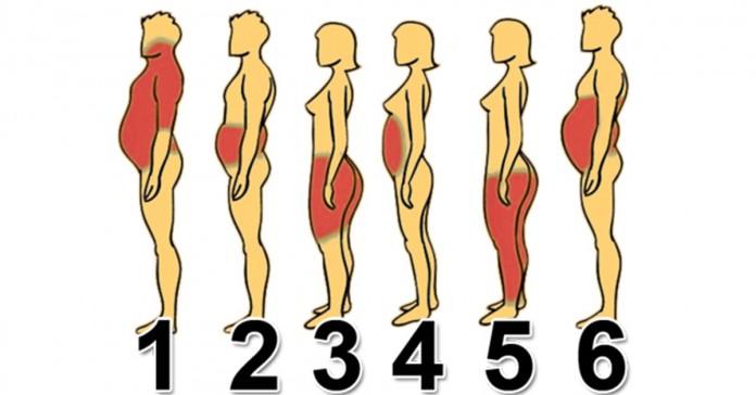 6 типов ожирения: Как справиться с каждым из них