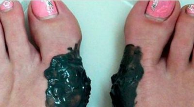 Вечная проблема: косточка на ноге и ее молниеносное решение