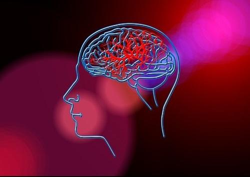 Учеными назван простой способ защиты от инсультов