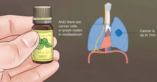 Вот то, что онкологи не расскажут вам об эфирных маслах