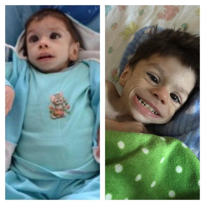 Мама 3-х детей усыновила голодающего 7-летнего мальчика, который весил всего 4 кг, но теперь он здоровый 8-летний мальчуган