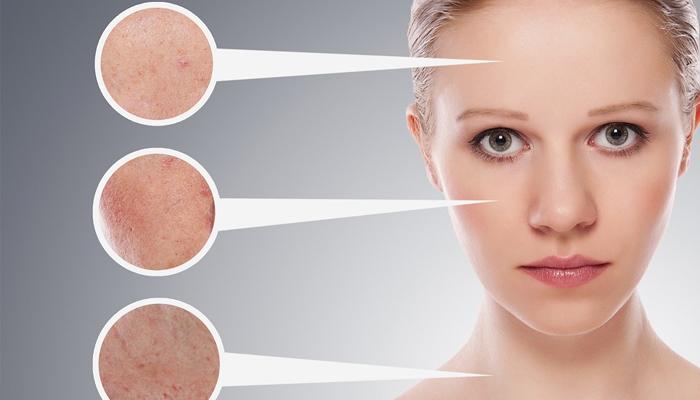 Как укрепить сосуды на лице? – эффективные рецепты