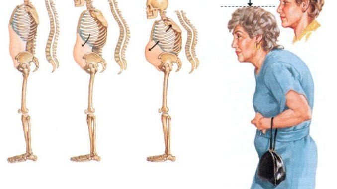 Я быстро избавилась от остеопороза и болей в спине с этим средством! 100% результат!