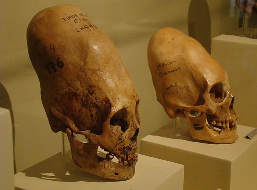 Вытянутые черепа из Паракаса…